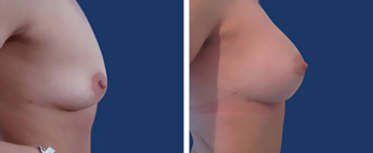 Body Procedures: Breast Augmentation