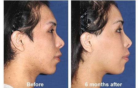 facial feminization surgery javier rossi