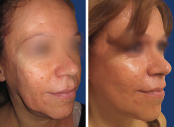 Full Lifting facial feminization surgery before and after
