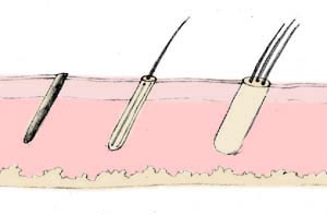 Hair Transplant by follicular micrografting